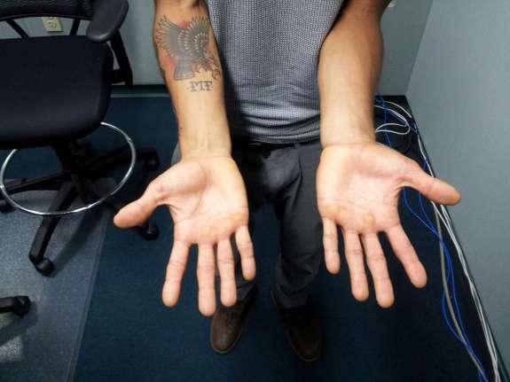Victor Montalvo shows his break dancing calluses. Photo: Matthew Peddie, WMFE